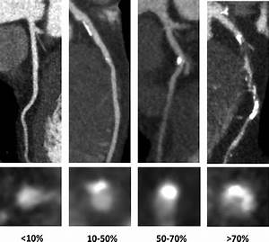 Observer Variability In The Assessment Of Ct Coronary