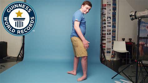 Teenager Can Make His Feet Face Backwards