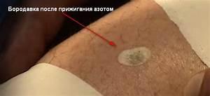 Удалить папиллому азотом в красноярске