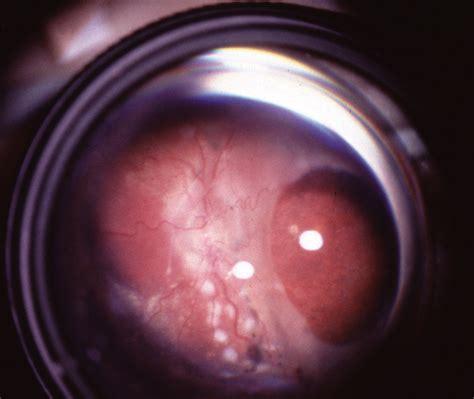 retinal detachment  macular holes  infants  retinopathy  prematurity neonatology