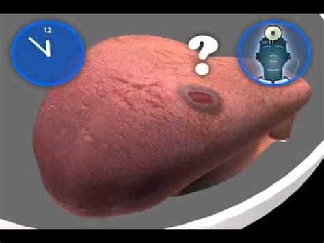 wie sieht zungenkrebs aus youtube