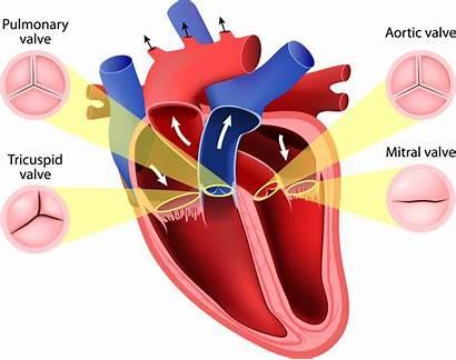 Heart Valve Disease Ie Croi Awareness Week