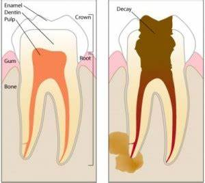 toothache exposed nerve pain relief