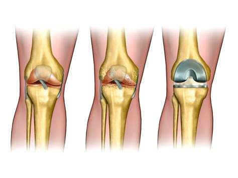 Types Of Knee Replacement Surgery In Mexico
