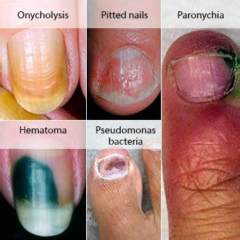 miraculous natural remedies  toenail fungus