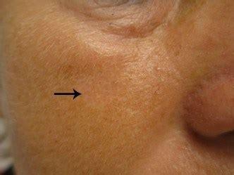 Hoe behandel je acne