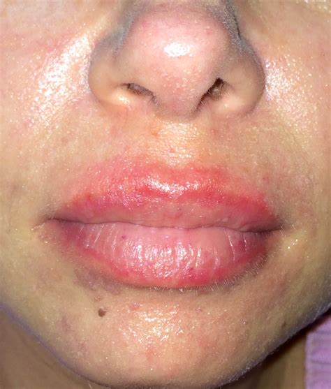 Image Gallery Lip Allergies