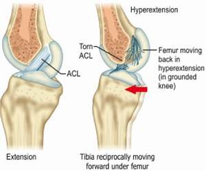 Diagram Of Torn Acl : acl reconstruction ligaments and joints suregery ~ A.2002-acura-tl-radio.info Haus und Dekorationen