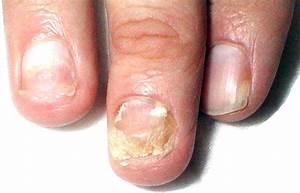 Грибок пальцев ногтей рук