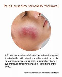 Pain Caused By Steroid Withdrawal
