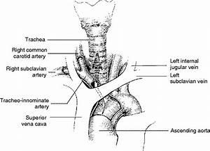 Common Tracheostomy Issues  U2013 Core Em