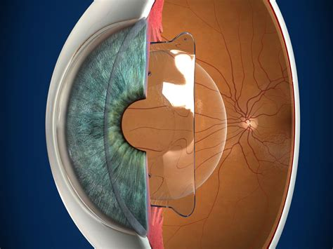 chambre implantable has phakic iol lens implant