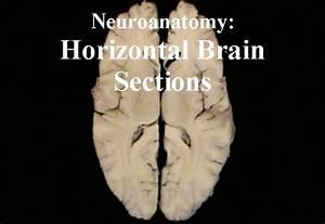 Neuroanatomy  Horizontal Brain Sections