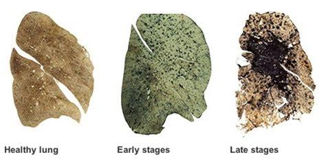 silica dust hazard