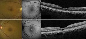 Pseudocystic Foveal Cavitation In Tamoxifen Retinopathy