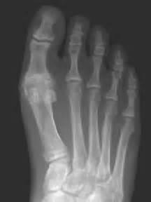 Arthritis of the Big Toe Joint Hallux Rigidus