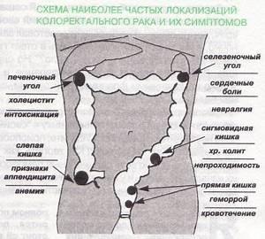 Свечи от геморроя и трещин метилурацил