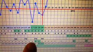 Interactive Bbt Chart Bfp Bbt And What We Did Different Youtube