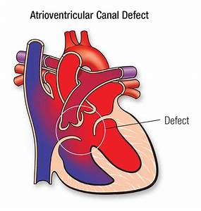 Complete Atrioventricular Canal Defect  Cavc