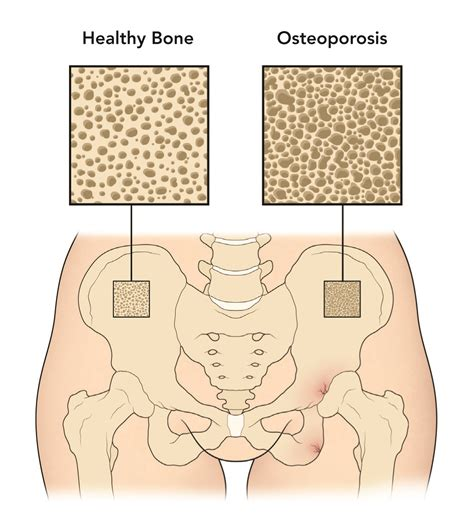 Menopause And Bone Loss Information Hormone Health Network