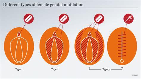 Wanita Dewasa In English Female Genital Mutilation Still A Global Concern World