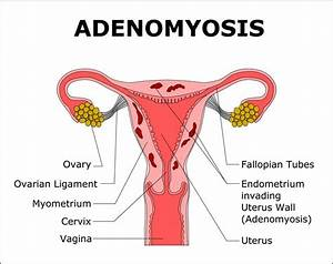 Adenomyosis Causes Pain  Heavy Periods And Infertility But