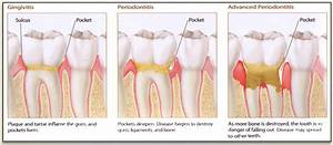 Blog « Dentist San Juan Capistrano CA, Cosmetic Dental ...
