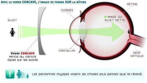 correction myopie lentille partie i de l oeil au cerveau quelques aspects de la 188   image