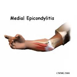 Medial Epicondylitis (Golfer's Elbow) Elbow Injuries and Disorders