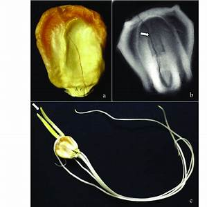 Ventral View Of Sweet Corn Seed  A
