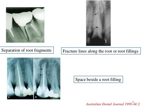 Root Types of Fractures and Healing