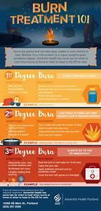Burn, Safety, Tips, For, Summer