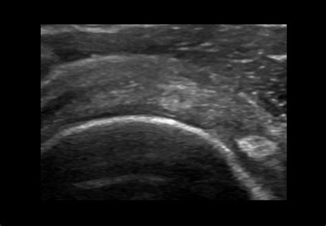 Shoulder and Rotator Cuff Assessment Ultrasound Scan for ...