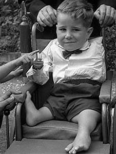 Thalidomide Tragedy Thalidomide Pictures