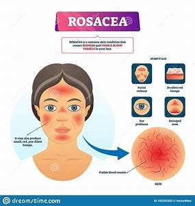 Rosacea Vector Illustration  Labeled Red Skin Problem