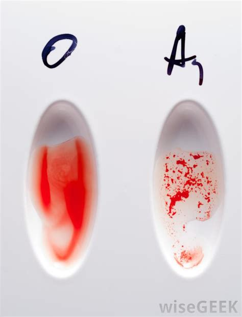 What Is The Most Rare Blood Type? (with Pictures. Um Frost School Of Music New Medical Practice. Immigration Lawyer Austin Tx. Axa Travel Insurance Usa Guaranty Bank Mobile. Dispute Resolution Lawyers Metal Roof Austin. North Las Vegas Storage Units. Whirlpool Duet Washer And Dryer For Sale. Dental Assistant School Purchase Domain Names. How To Become Financial Planner