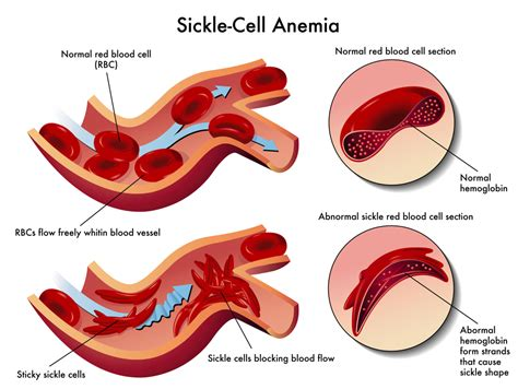 New Treatment For Sickle Cell Anemia  Worldwithtj. Where Are Wisdom Teeth Micro Cap Mutual Funds. Scientific Windows Chicago Honda Lubbock Tx. Degrees For Police Officers Online Pc Backup. Maid Service In Las Vegas Rolla Dental Clinic. Difference Between Term And Whole Life Insurance. Laser Pubic Hair Removal Before And After. Locksmith Rancho Cucamonga Montana Lemon Law. What Does Protein Shakes Do Dentists In Pune
