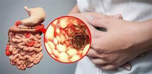 Crohn U0026 39 S Disease Causes  Symptoms  Diet  Medications