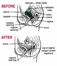 Hysterectomy And Laparoscopy Explained By Dr Roger
