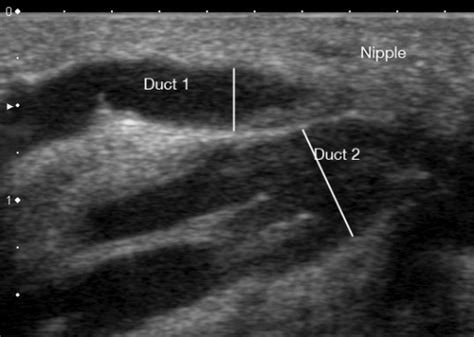 Milk Ducts In Breast Images Ultrasound Image Of A Milk Ducts In The Human
