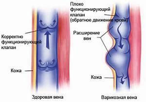 Лечение грибка ног при беременности