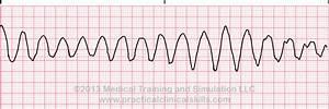 Ventricular Rhythms | Lessons | Drills