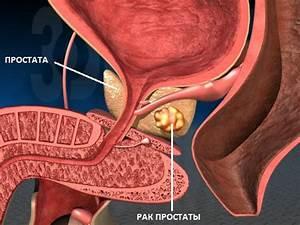 Индометацин свечи при лечении простатита