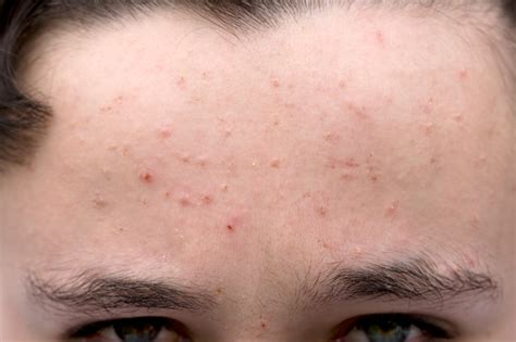 acne doesnt   ruin  life westchester health blog