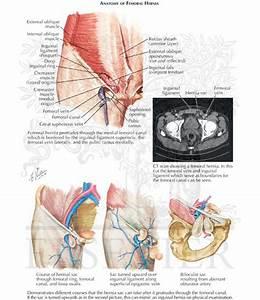 Femoral Hernia  Anatomy Of Femoral Hernia