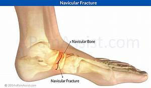 accessory navicular pain relief