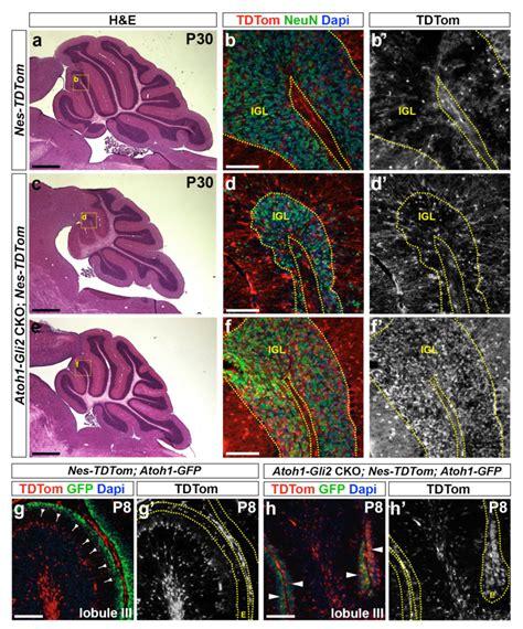 Nestin-Expressing Progenitors (NEPs) populate the EGL ...