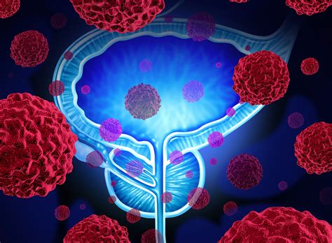 Metastatic Prostate Cancer Target Identified For Combo Therapy