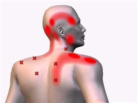 Sintomi mal di schiena