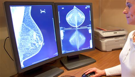 digital mammography  tomosynthesis linked  increased